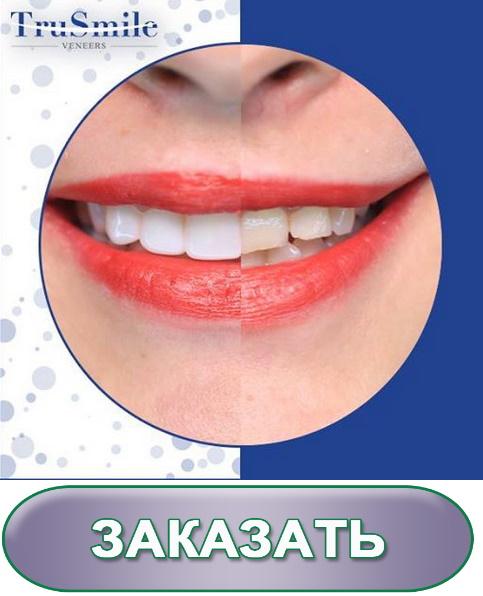 виниры обточка зубов