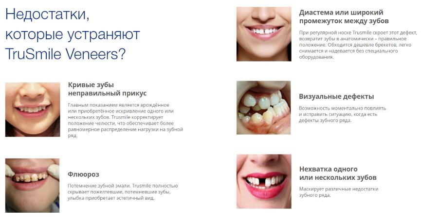 настоящие виниры для зубов