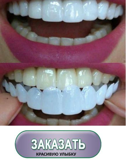 наклейки на зубы виниры