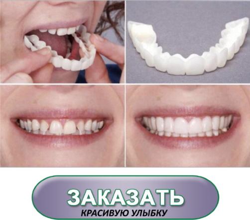 выравнивание зубов винирами до и после